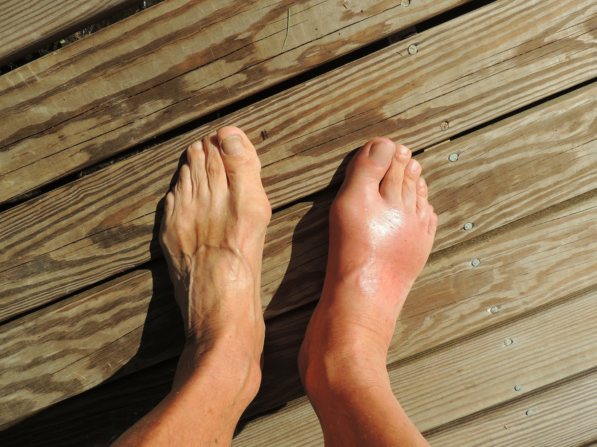 Remedies For Gout Relief